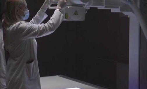 Uskoro novi rendgen aparat u DZ Brus